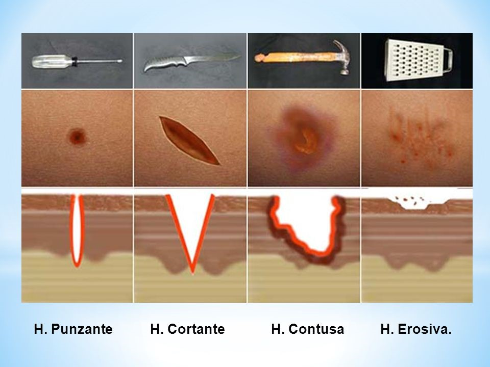 ¿Cuáles son los tipos de heridas que existen?